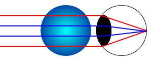 遠近両用コンタクトの網膜像のイメージ